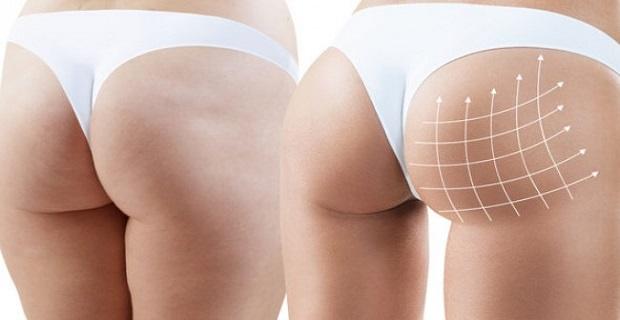 Magni Skin London; Ameliyatsız estetikler için doğru adres