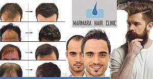 Saç Ekiminde Uzman Marmara Hair Clinic